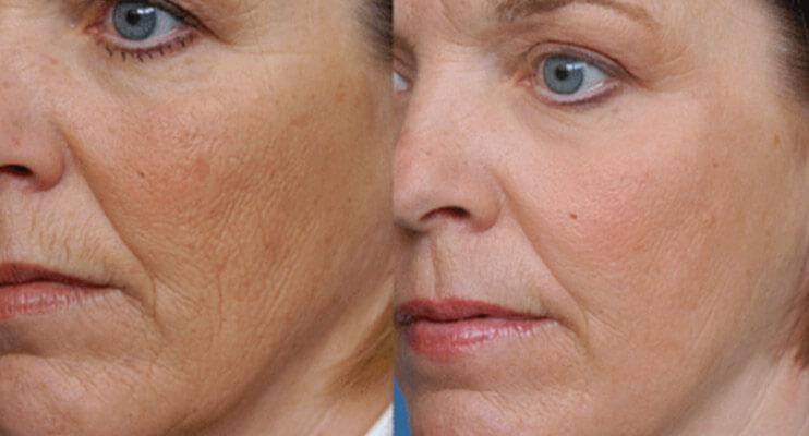 Laser Skin & Rejuvenation Services in Gallatin, TN