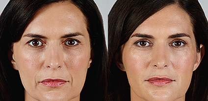 Botox Services in Gallatin, TN | Profiles Laser & Medical