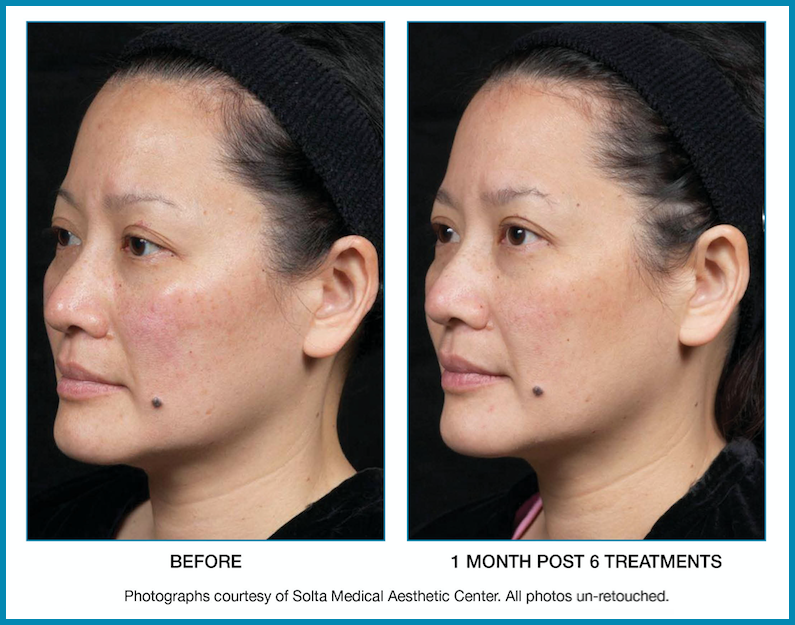 Laser Skin & Rejuvenation Services in Gallatin, TN   Profiles Laser